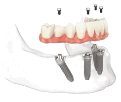 Dental Implants Professionals first image
