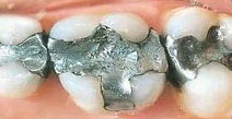 All Smiles Dental third image