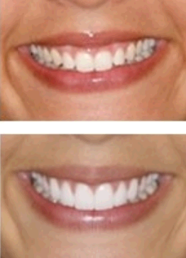 Charlotte Center for Cosmetic Dentistry second image