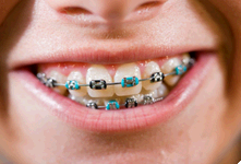 McGarrell Orthodontics first image