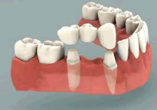 Ranfurly Dental fourth image