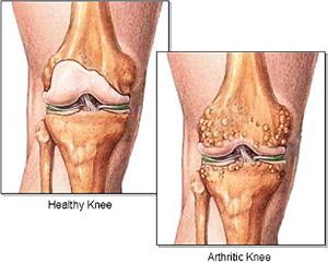 OrthoTexas - Knee Pain Frisco second image