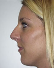 The Seattle Rhinoplasty Center third image