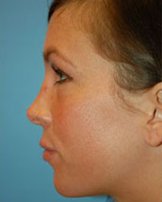 The Seattle Rhinoplasty Center fourth image