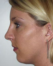 The Seattle Rhinoplasty Center fifth image