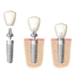 Tooth Implant Sydney second image